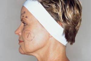 Rejuvenescimento Facial - Lifting completo