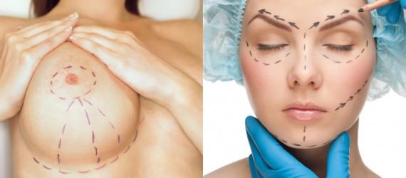 Cirurgia Estética